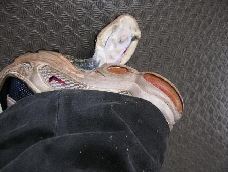 悲惨な靴底