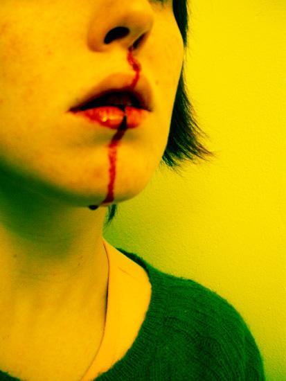 nosebleed001